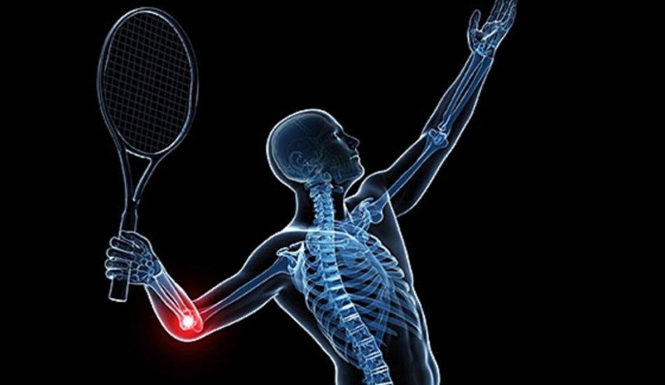 «Теннисный локоть»: что это такое и как это лечить